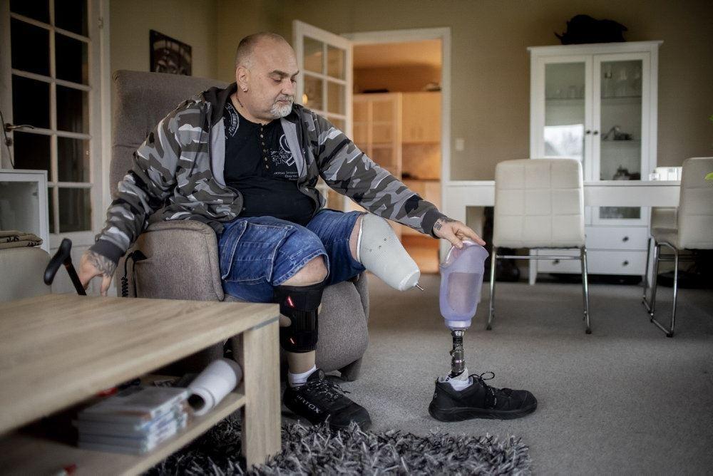 mand med benprotese sidder på stol i stue