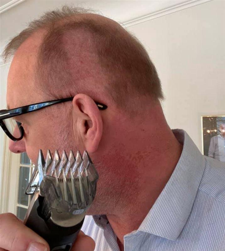 En mand har barberet sig halvskaldet