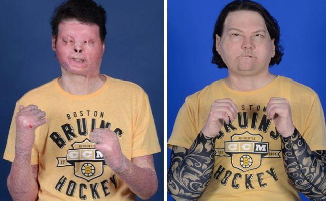 Før og efterbilledet. På før billedet kan man se hans ansigt næsten er smeltet blandt andet øjenlågene.