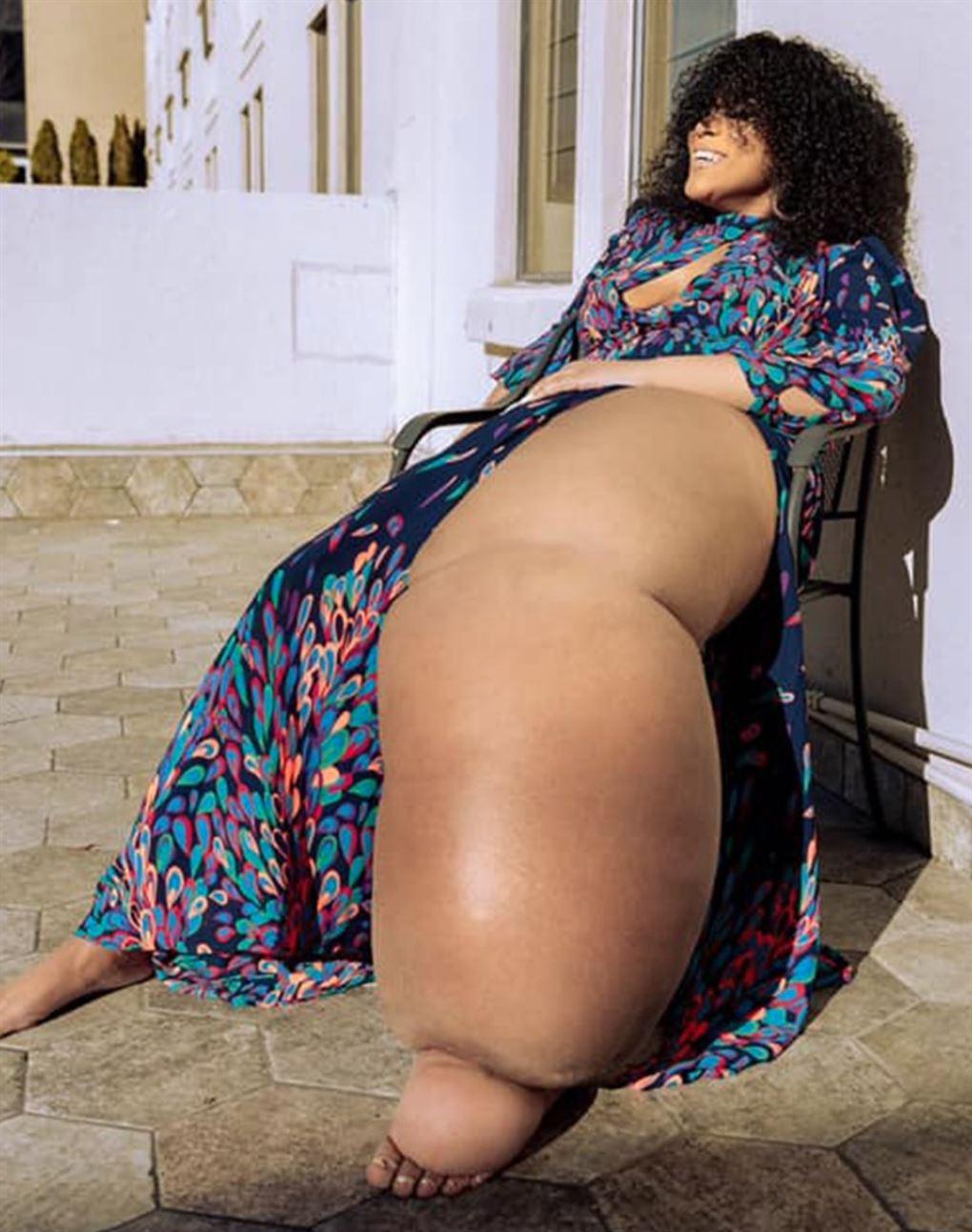 En pige med et kæmpe ben